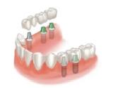 graphic_implant-bridge