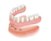 graphic_implant-denture