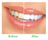 graphic_teeth-whitening-example